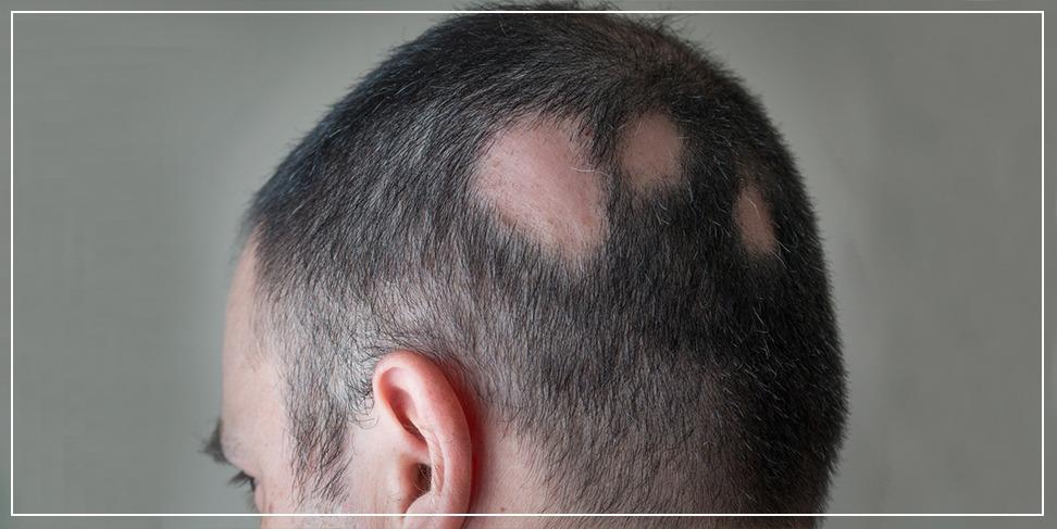 alopecia - helikobakter