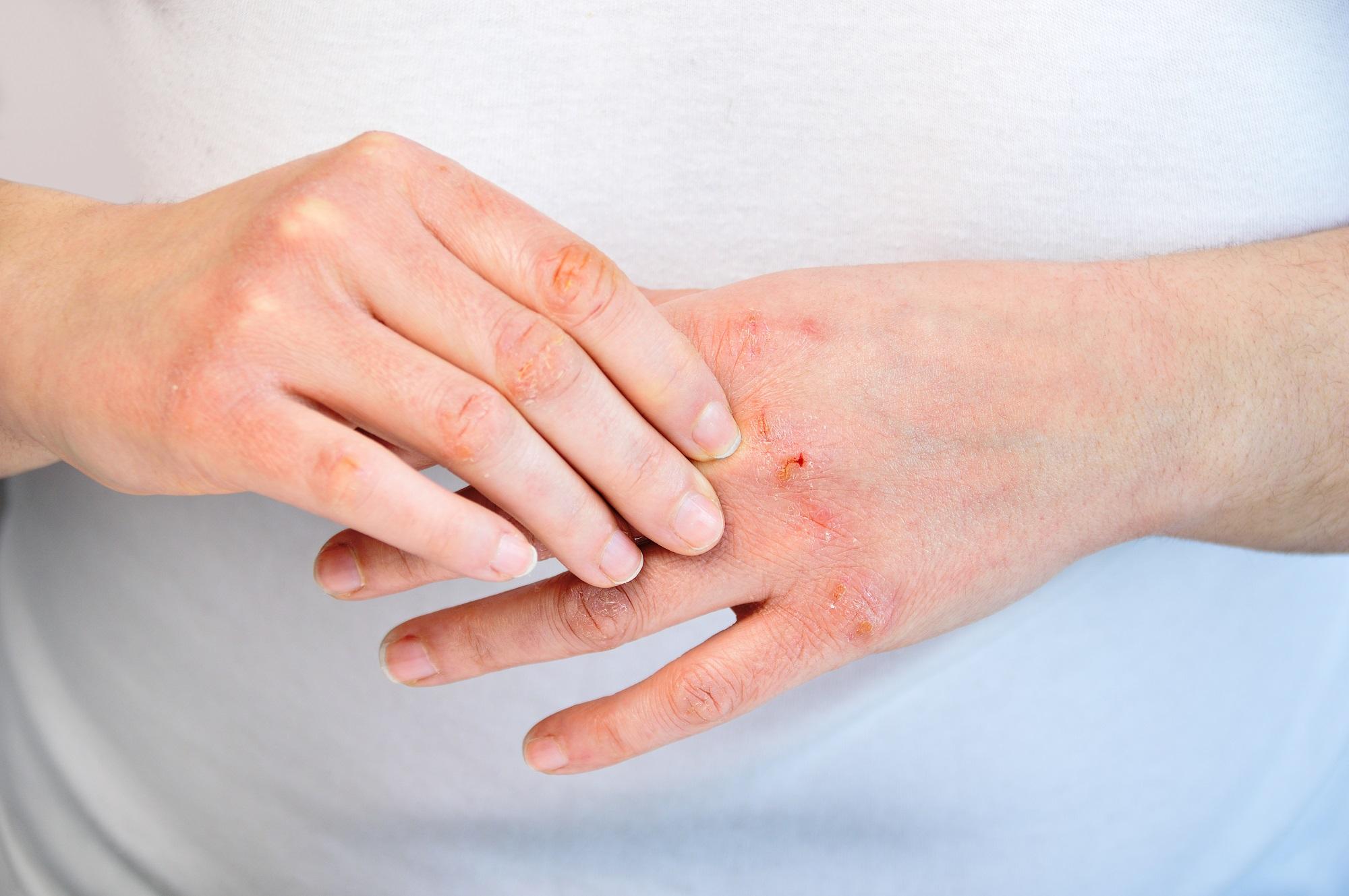 Atopikus dermatitisz