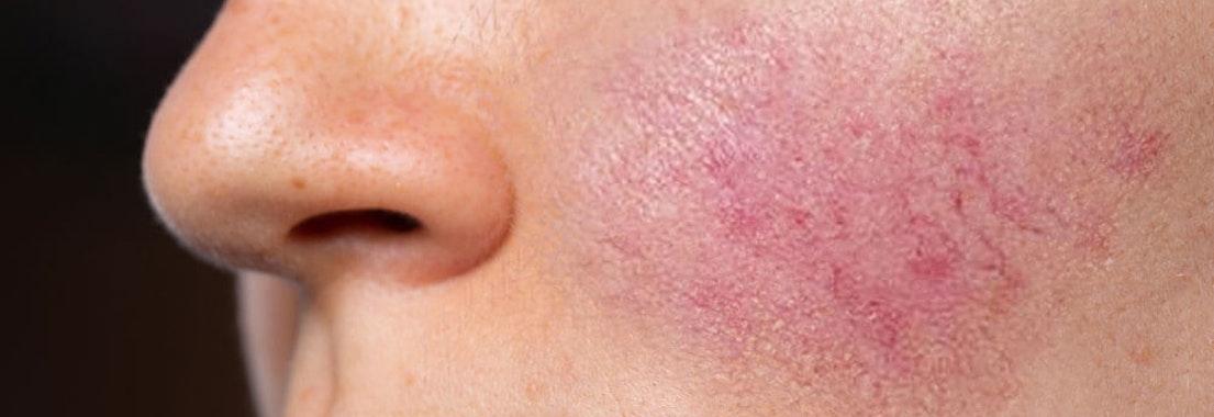 rosacea - helicobacter